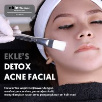 Ekles Clinic - Detox Acne Facial
