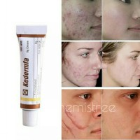 Face remove acne scar cream anti aging moisture cream